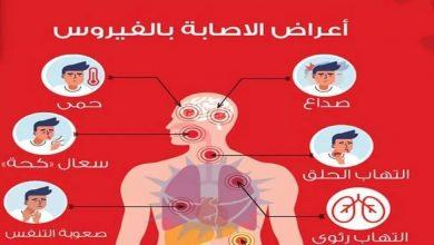 Photo of ماهي الأعراض التي ينفرد بها فيروس كورونا؟