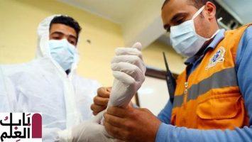 كورونا في مصر إجمالي المصابين 15003 والوفيات 696 حالة